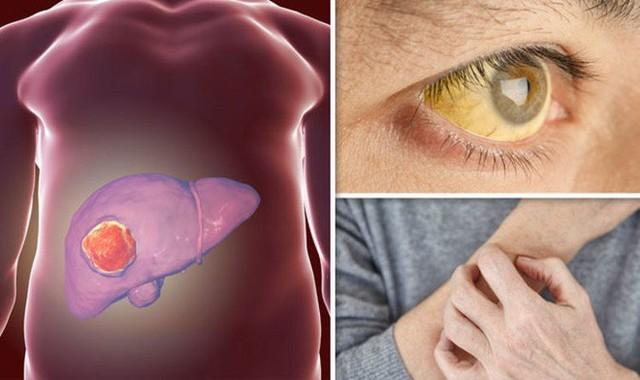 BS ung bướu: Đây là những việc bạn có thể làm để ngăn ngừa ung thư gan, rất nên tuân thủ - Ảnh 3.