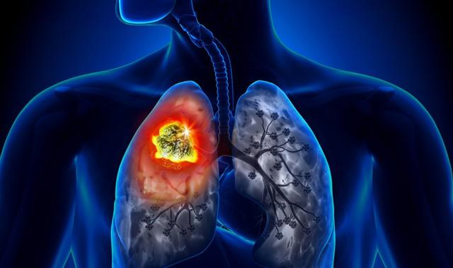 90% người mắc ung thư phổi tử vong trong vòng 1 đến 2 năm vì bỏ qua những dấu hiệu này - Ảnh 1.