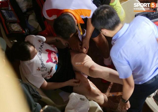 Nữ CĐV bị bỏng nặng vì trúng pháo: Vết nhơ của bóng đá Việt Nam - Ảnh 6.