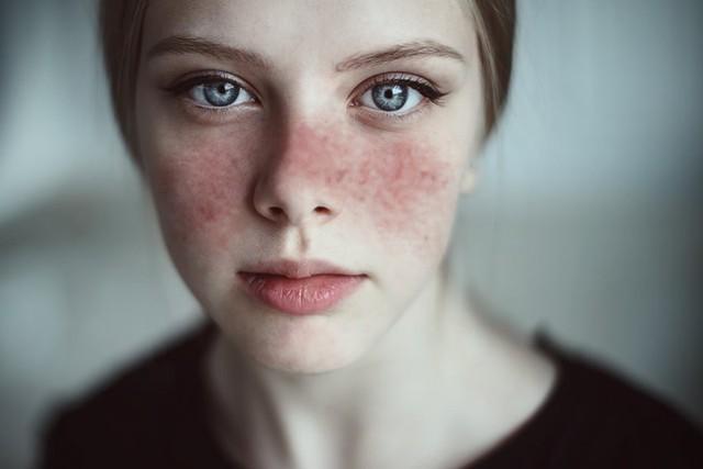 8 căn bệnh mà cẩn thận còn sống chung với lũ, sơ sẩy thì vào ngay cửa tử: Nam giới cần để tâm 1 thì nữ giới phải chú ý 10 - Ảnh 3.