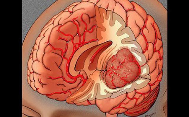 Bác sĩ BV 108: 8 dấu hiệu có thể bạn bị u não, nếu có cần đến viện kiểm tra ngay - Ảnh 2.
