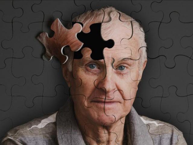 Công bố mới: Đã có vắc xin đặc trị chứng mất trí Alzheimer  - Ảnh 1.