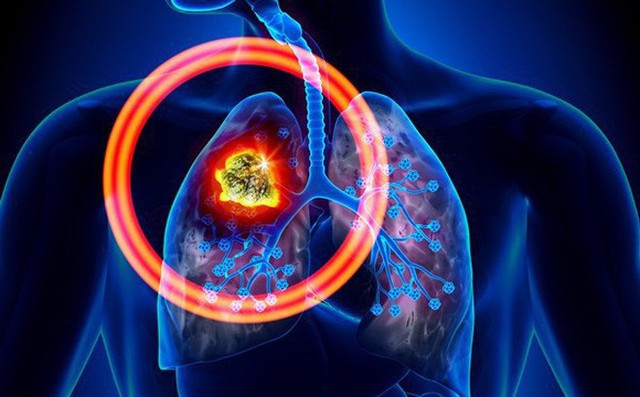 Cả đời không hút thuốc, người đàn ông 42 tuổi vẫn mắc ung thư phổi vì công việc mình đã làm suốt 20 năm - Ảnh 3.