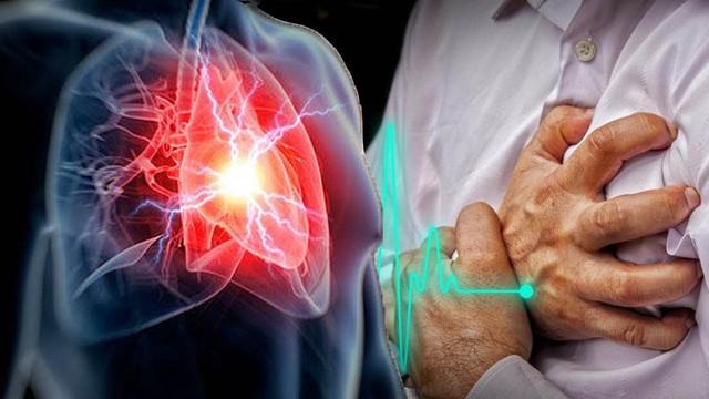 25% dân số Việt Nam đang mắc bệnh tim mạch: Để phòng bệnh bạn hãy thực hiện ngay 5 thay đổi nhỏ này - Ảnh 3.