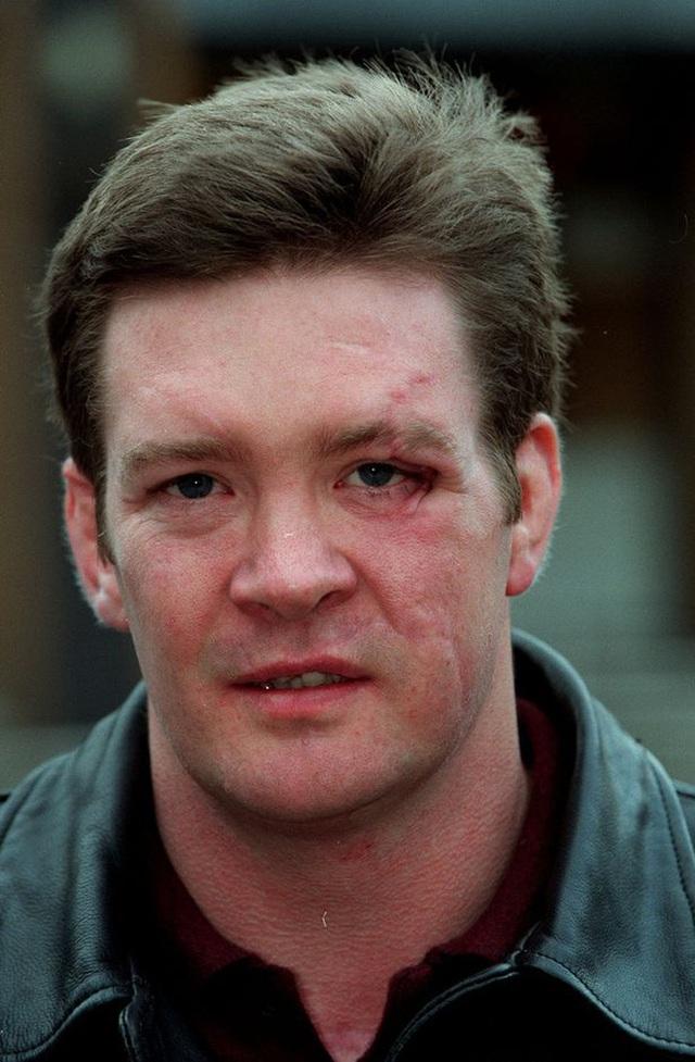 Người duy nhất sống sót trong tai nạn thảm khốc của Công nương Diana: Phải phẫu thuật khuôn mặt, bị kiện tụng và thuyết âm mưu bủa vây hơn 2 thập kỷ - Ảnh 8.