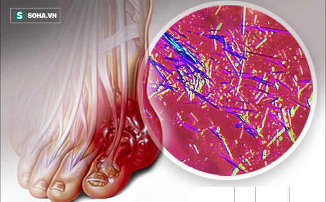 Công thức 3 nhiều 3 ít để hạ Axit Uric trong máu: Người trẻ hay già đều nên quan tâm - Ảnh 1.