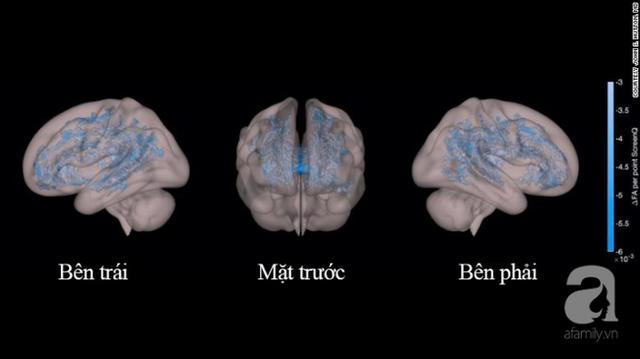 Nhìn bức ảnh chụp não bộ của hai đứa trẻ: thường xuyên đọc sách và thường xuyên xem điện thoại, cha mẹ sẽ biết mình nên làm gì với con - Ảnh 3.