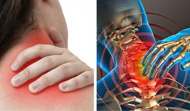 6 nguyên nhân hàng đầu gây đau vùng cổ