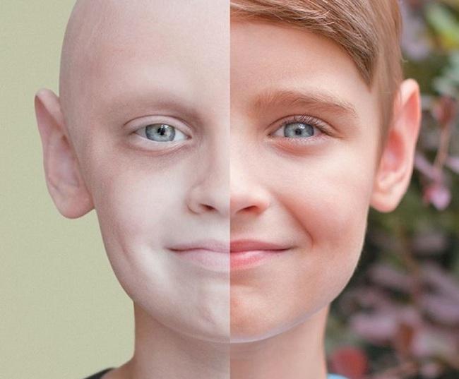 Khi ung thư không còn là chuyện người già mà là mối lo của cả thế hệ trẻ: Nguyên nhân từ đâu?