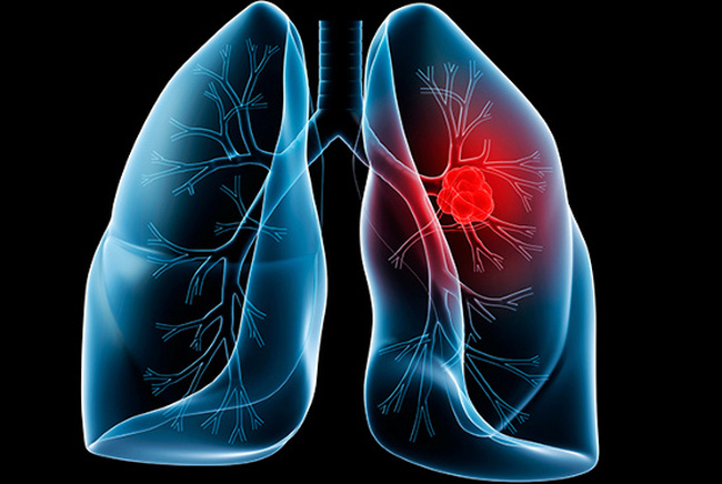 Dù không hút thuốc, chúng ta vẫn dễ mắc ung thư phổi bởi nguyên nhân khó tránh này