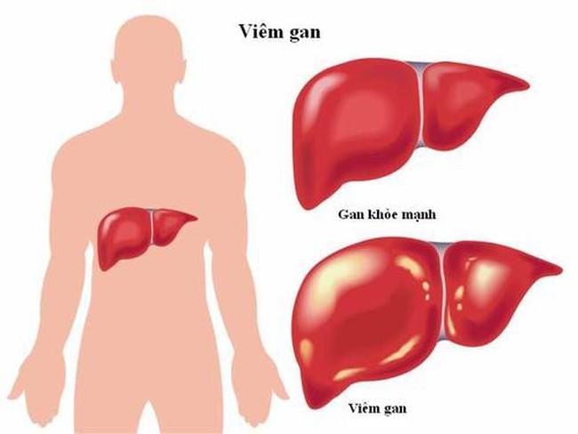 """Viêm gan do virus: """"Kẻ giết người nguy hiểm"""" ngang AIDS và lao"""