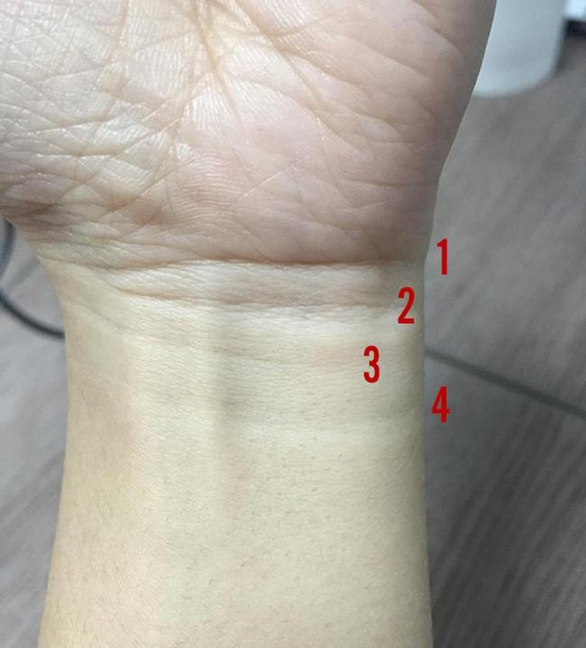 Vân cổ tay: Những dự báo rõ nét về tuổi thọ và vận mệnh của một người