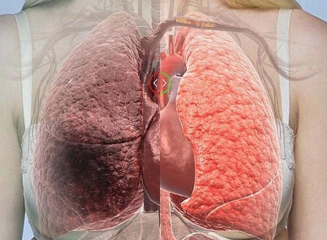 9 loại thực phẩm giúp thanh lọc phổi tốt nhất ai cũng nên ăn