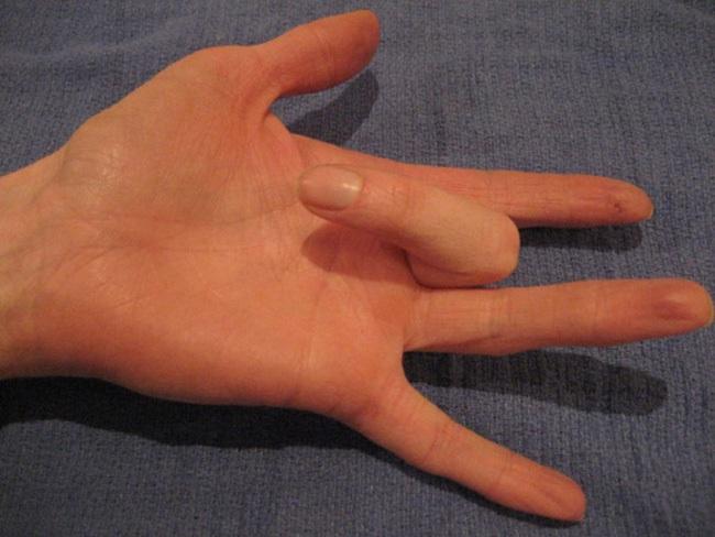 Tình trạng kỳ quặc này có thể khiến ngón tay bạn không hoạt động được