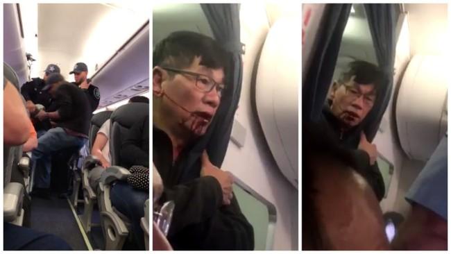 Khách đổ máu khi bị lôi khỏi chỗ trên chuyến bay của hãng hàng không lớn thứ 2 thế giới