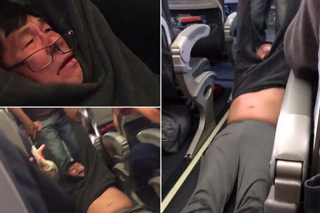 Đẩy bác sĩ gốc Việt khỏi máy bay, United Airlines biến khủng hoảng truyền thông thành thảm họa như thế nào?
