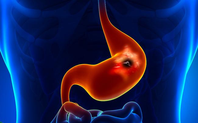 Nguyên nhân gây viêm loét dạ dày, tăng nguy cơ dẫn đến bệnh ung thư: Điều thứ 7 rất nhiều người mắc
