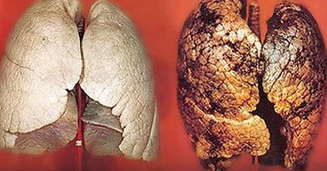 Dấu hiệu của ung thư phổi: Nắm vững để chặn đứng nguy cơ mắc bệnh