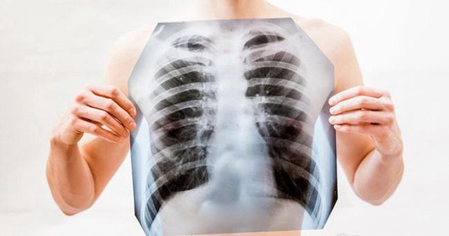 4 nhóm nghề nghiệp có nguy cơ mắc ung thư phổi cao nhất, hãy cảnh giác để phòng tránh sớm