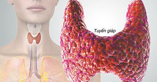 20 triệu người Mỹ mắc bệnh tuyến giáp: Hiểu rõ suy giáp, cường giáp và ung thư tuyến giáp
