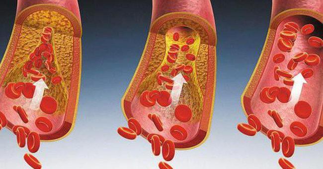 6 hành vi khiến mạch máu tắc nhanh hơn, nhiều người 'vô tư' làm hàng ngày mà không biết