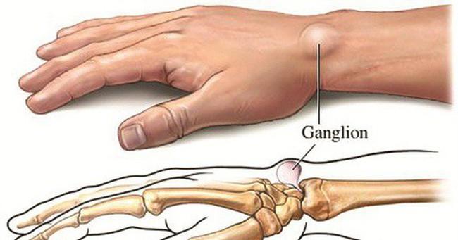 Khi bị nổi cục u không đau, đừng tự 'đoán' lành hay ác, khám chậm trễ có thể thành tật