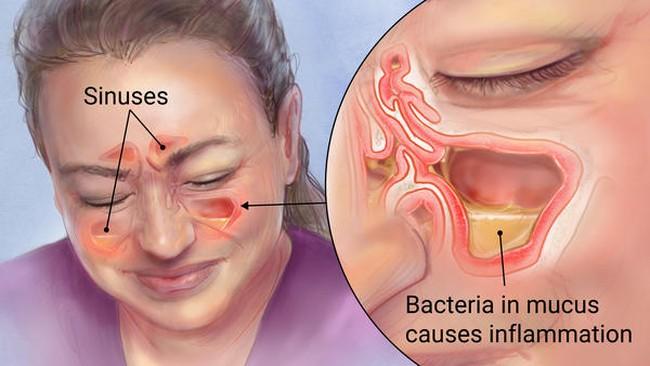 Nếu bạn đang bị viêm xoang: Hỗn hợp dễ làm này sẽ giúp bạn khống chế bệnh
