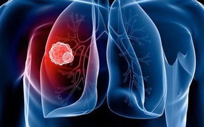 30 tuổi mắc ung thư phổi, nam thanh niên ôm mặt khóc hối hận chỉ vì thói quen 15 năm trước
