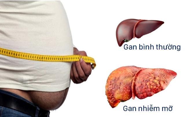 Dấu hiệu cảnh báo gan nhiễm mỡ dù không uống rượu bia: Phát hiện sớm sẽ tránh được bệnh xơ gan và ung thư gan