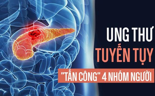 Ung thư tụy rất nguy hiểm vì khó chữa, ai có 4 đặc điểm này hãy đặc biệt cẩn thận