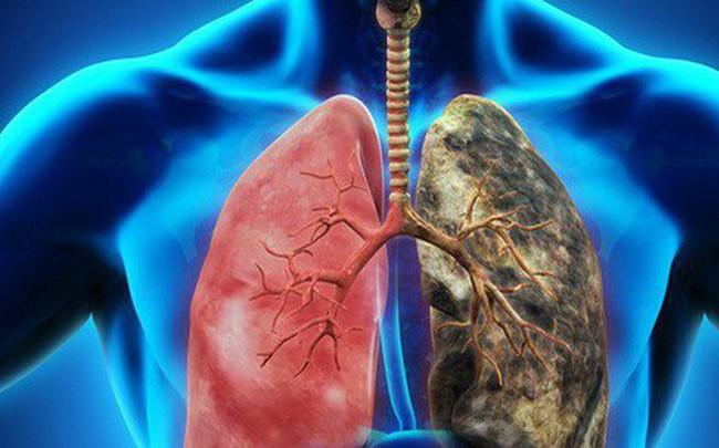 Dấu hiệu điển hình của ung thư phổi: Biết sớm để giành lại cơ hội sống cao nhất là 49%
