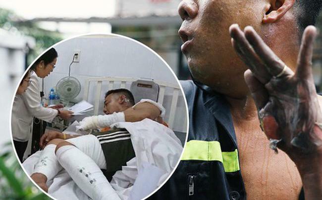 """Gặp anh lính cứu hỏa bị bỏng tuột da tay: """"Thấy máy bơm trục trặc tôi định tiến đến sửa thì nó phát nổ"""""""