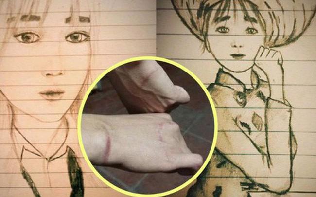 Thanh niên bị đứt gân cả 2 bàn tay, cầm bút viết cũng khó khăn nhưng vẫn đam mê hội họa