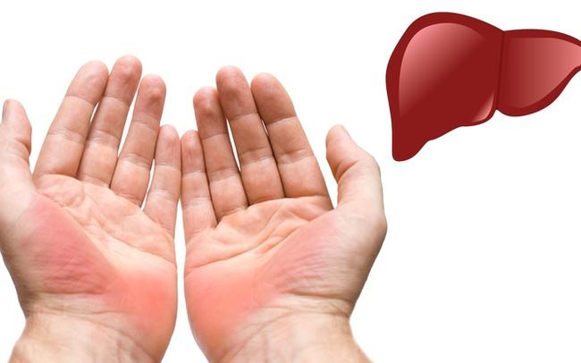 7 dấu hiệu thường gặp trên bàn tay nhưng ẩn chứa nguy cơ sức khỏe nghiêm trọng, đừng chủ quan để phải hối hận