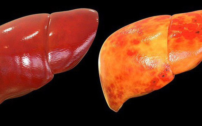 Cách loại bỏ mỡ thừa nhanh, phòng bệnh gan nhiễm mỡ chỉ trong 1 tháng: Ai cũng nên áp dụng