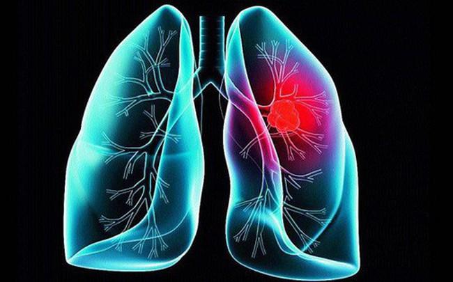 Khi bị ho, sốt và 3 dấu hiệu đi kèm cùng lúc, cẩn thận ung thư phổi đã vào giai đoạn nặng