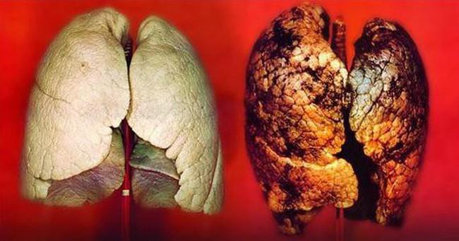 """Không hút thuốc lá mà vẫn bị ung thư phổi, chuyên gia xác nhận đây chính là """"thủ phạm"""""""
