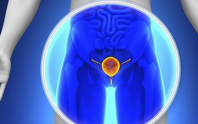 """[Cẩm nang] Nếu xuất hiện các dấu hiệu này khi đi tiểu, có thể cơ thể đang có """"mầm"""" ung thư"""