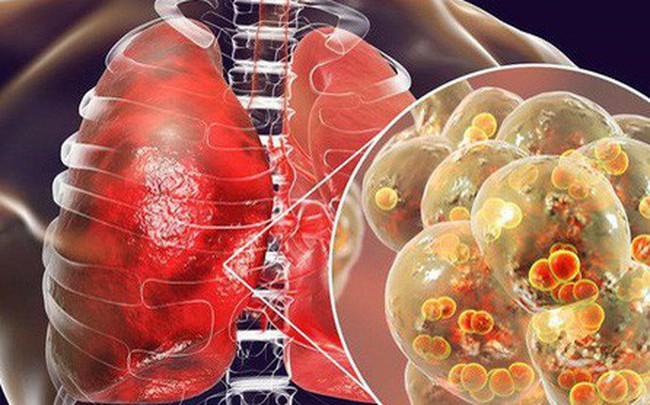 """Trời lạnh rất dễ viêm phổi: 8 dấu hiệu """"tố cáo"""" bệnh sớm biết để ngừa biến chứng nguy hiểm"""