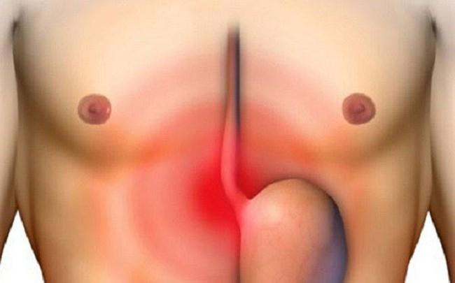 Đau vị trí này cảnh báo ung thư dạ dày cần đi kiểm tra ngay
