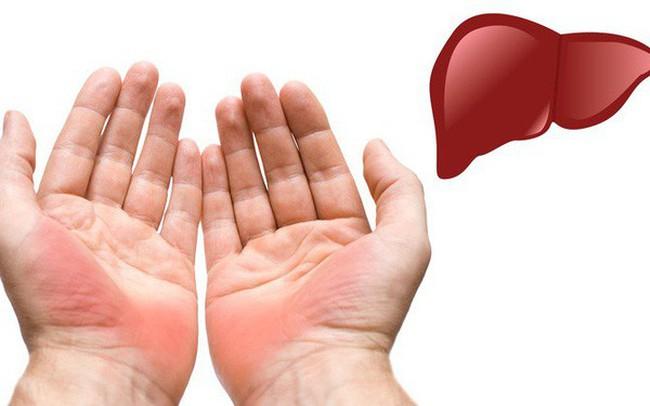 Dấu hiệu ở tay cũng có thể chỉ ra một số vấn đề về sức khỏe, đừng bao giờ bỏ qua dấu hiệu thứ 4