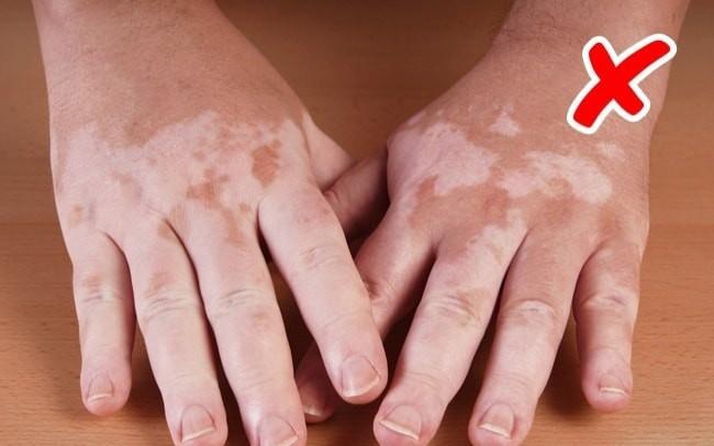 Cẩn thận với những bệnh nguy hiểm được thông báo qua dấu hiệu bất thường trên làn da