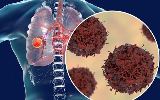 """Không hút thuốc, bạn vẫn có nguy cơ cao mắc ung thư phổi: """"Thủ phạm"""" là thứ chúng ta đang tiếp xúc từng ngày từng giờ!"""