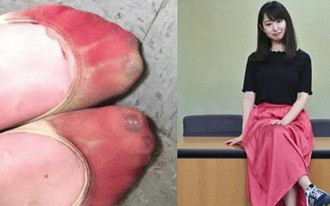 Phong trào #KuToo: Đôi chân rớm máu vì giày cao gót và lời kêu cứu của phụ nữ Nhật Bản chốn công sở