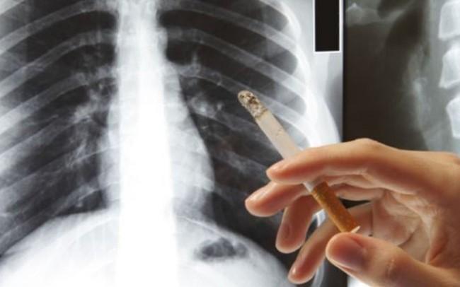 90% người mắc ung thư phổi tử vong trong vòng 1 đến 2 năm vì bỏ qua những dấu hiệu này