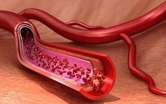 """Mạch máu khỏe tuổi thọ mới cao: Những """"cao thủ"""" bảo vệ và chăm sóc huyết quản bạn nên biết"""