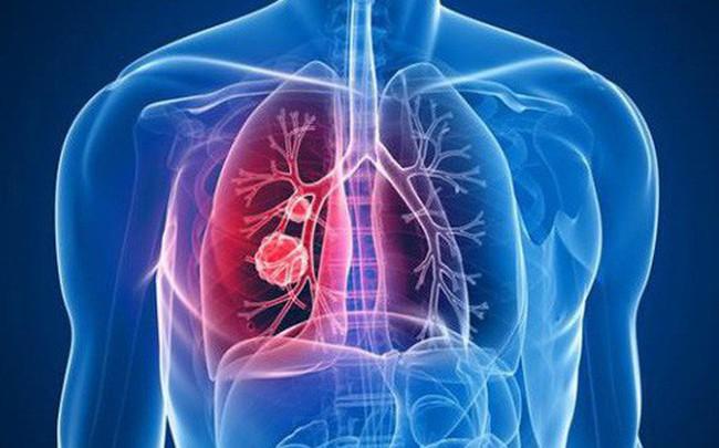 Đau lưng có phải là triệu chứng sớm của ung thư phổi: Bác sĩ chỉ cách nhận biết quan trọng