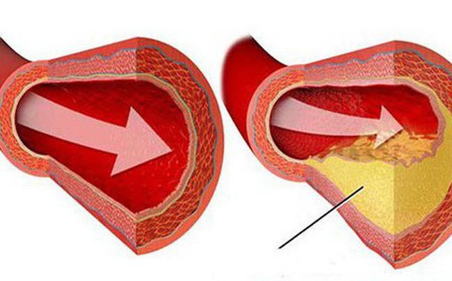 """Bệnh mỡ máu cao """"không trừ một ai"""": Muốn không có bệnh thì nên chú ý 7 điều quan trọng"""