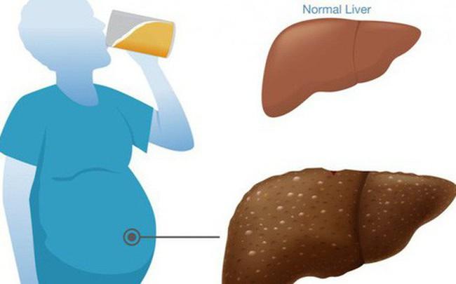 Người làm tốt 5 việc này ít khi mắc bệnh gan: Thải độc, tăng khí huyết, ngừa bệnh hiệu quả