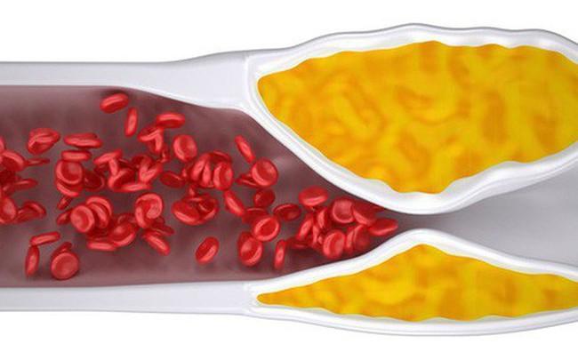 BS cảnh báo 4 dấu hiệu của chứng tắc mạch máu: Cần chú ý đề phòng tử vong bất ngờ